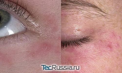 Фото аллергии на косметику