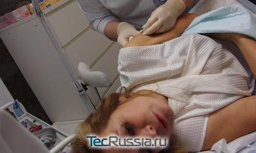 Звезда «Дома-2» Ирина Агибалова откровенно рассказала о липосакции ног