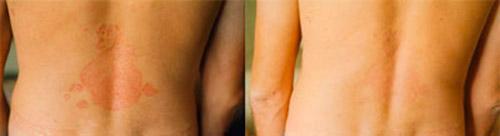 Кловейт – фото до и после