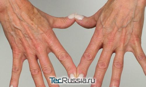 Как проводится мезотерапия для рук