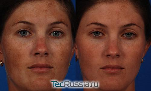 До и после лечения мелазмы на коже лица
