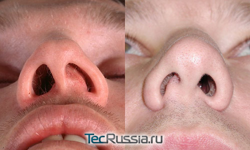 Как исправить перегородку носа