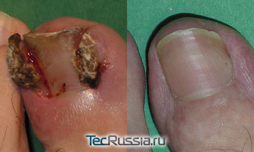 фото до и после операции по лечению вросшего ногтя