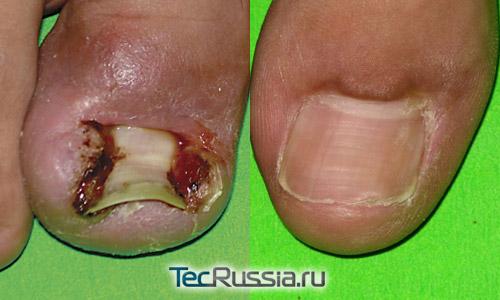 фото до и после хирургического лечения вросшего ногтя на ноге