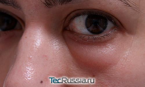 вротек под глазами после инъекций гиалуроновой кислоты