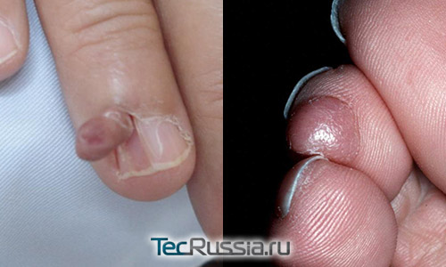 фиброма на пальцах руки и ноги