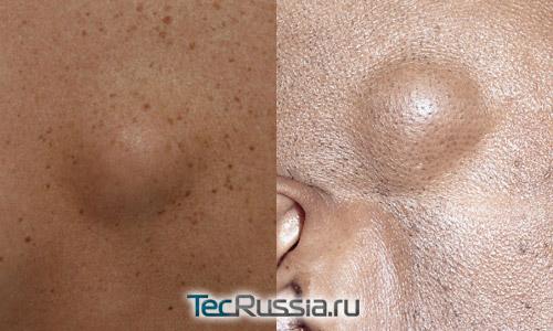 липома (жировик) на спине и на лице