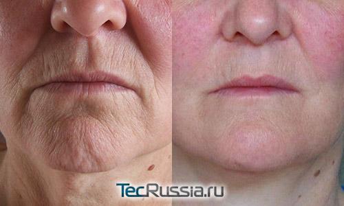 состояние морщин вокруг губ до и после подтяжки кожи лица