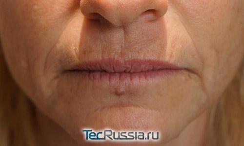Как убрать морщины под нижней губой
