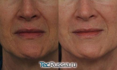 Удаление морщин вокруг рта лазером, фото до и после