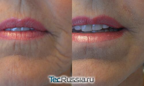 коррекция вертикальных морщин над верхней и под нижней губой