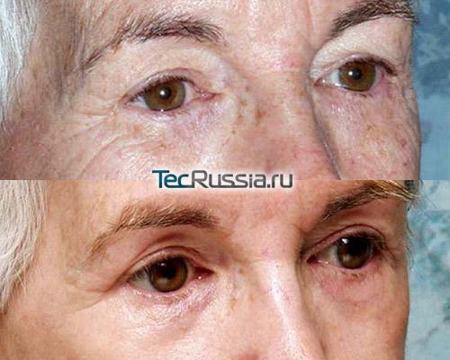 фото до и после глубокого химического пилинга