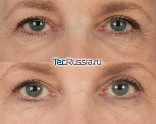 до и после инъекций Рестилайна в зону вокруг глаз