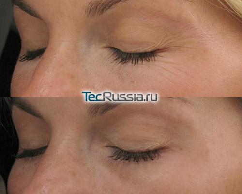 RF-лифтинг кожи вокруг глаз – фото до и после