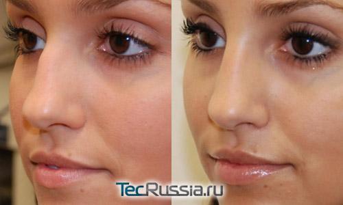 коррекция носа инъекциями силикона