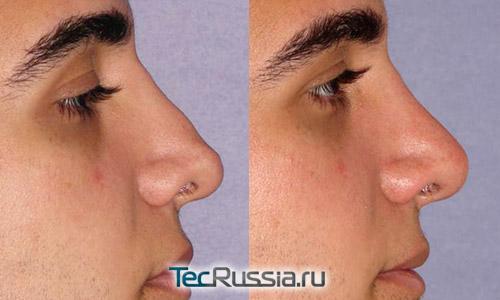 Фото до и после безоперационной ринопластики филлером Радиесс