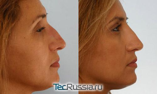 Коррекция носа без операции филлером Ювидерм