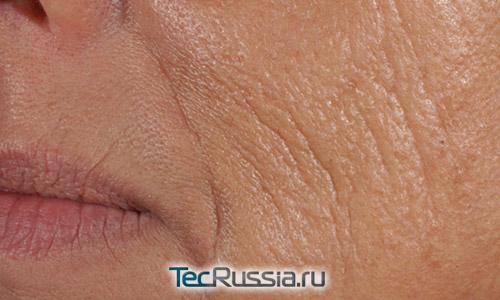 стареющая кожа на щеках