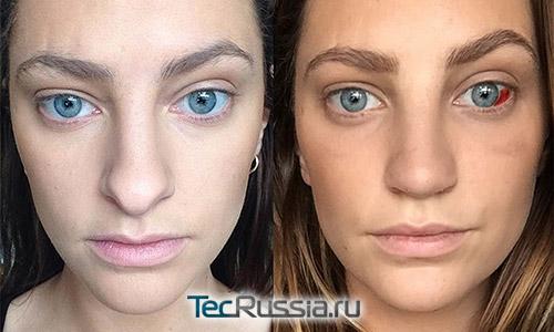 фото до и через 6 недель после пластики носа (видно сохранивншийся отек)