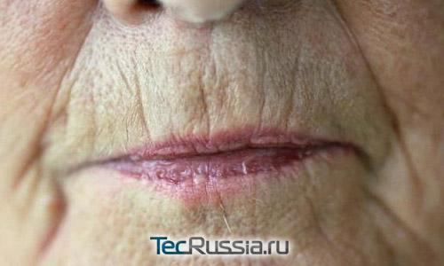 Избавление от морщин над верхней губой