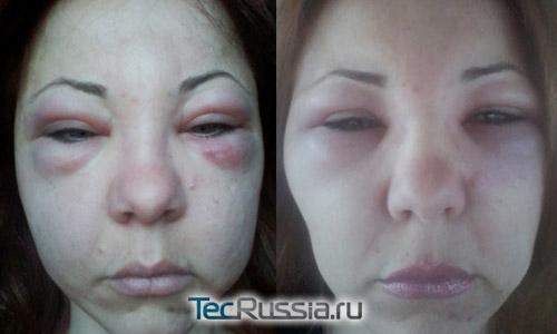 отек лица после инъекций ботулотоксина