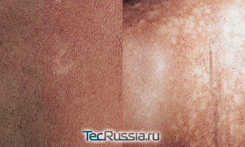 белые пятна на лице и на спине от пойкилодермии