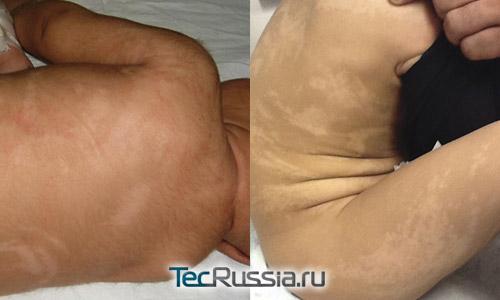 детский гипомеланоз на спине и других участках тела
