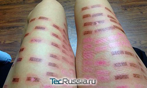 повреждения кожи после лазерной эпиляции