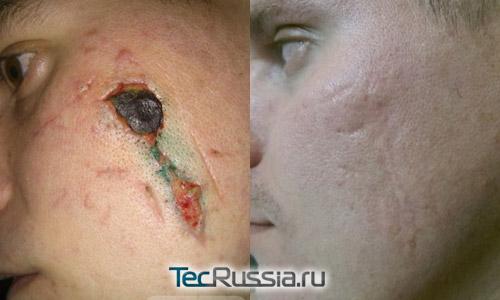 рубец до и после лечения мазью Контрактубекс