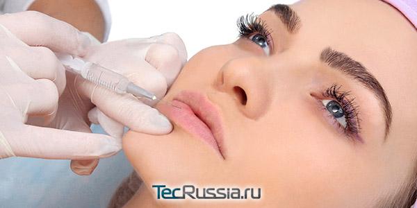Последствия увеличения губ гиалуроновой кислотой