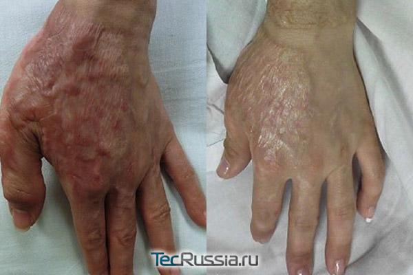 термическая травма ксити до и после терапии PDL-лазером