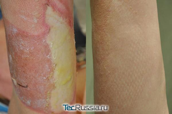 хирургическая пересадка кожи