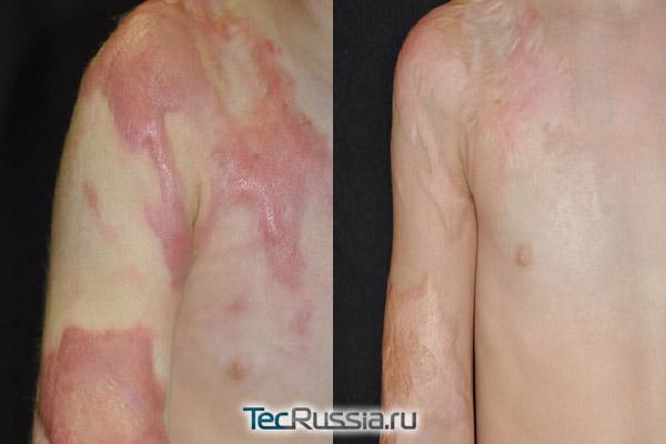 до и после лечения ожога