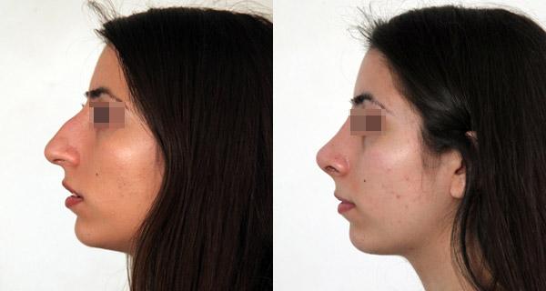 Кибишева Амина, фото до и после ринопластики
