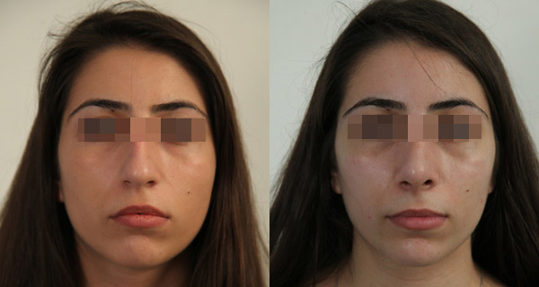 Хирург Кибишева Амина, фото до и после ринопластики