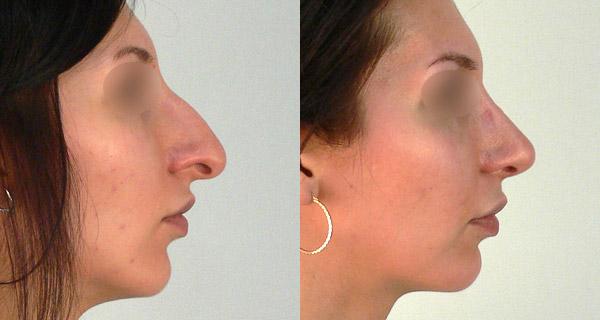 нос фото до и после ринопластика