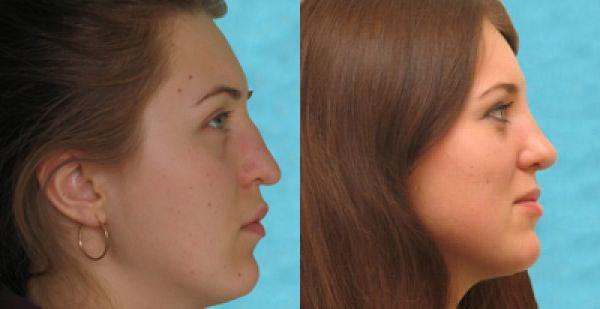 Фото до и после ринопластики у доктора Янковской Н.Л.