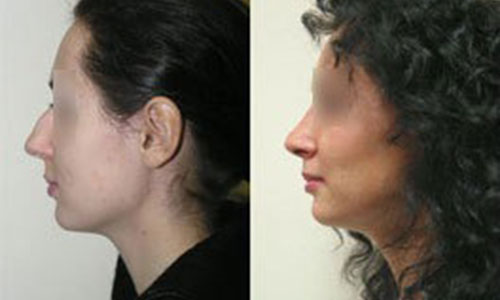 Хирург Александр Жуков, фото до и после ринопластики