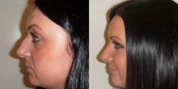 Фото до и после ринопластики у доктора Меладзе З.А.