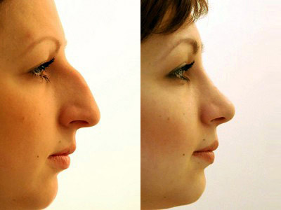 Хирург Зураб Хуцидзе, фото до и после ринопластики