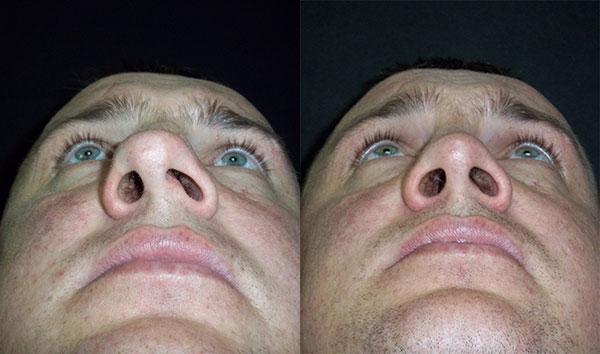 Пластика кривого носа