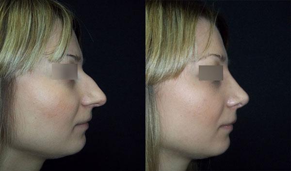ринопластика длинного носа с горбинкой, вид сбоку, хирург Т.А.Алексанян