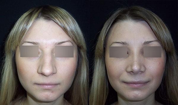 ринопластика длинного носа с горбинкой, вид спереди, хирург Т.А.Алексанян