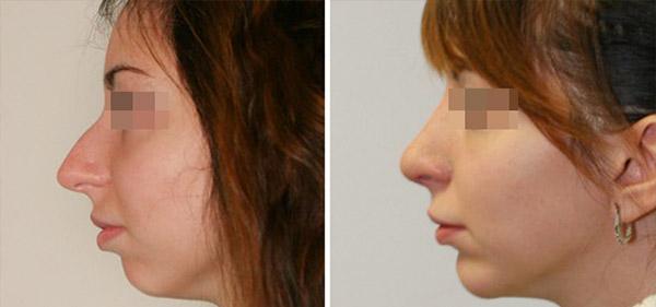 Пластика длинного носа, вид сбоку, хирург Шихирман Э.В.