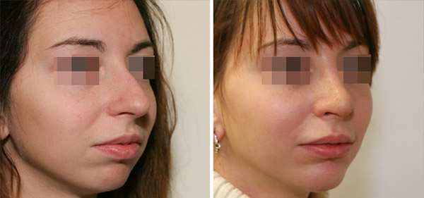 Пластика длинного носа, вид в 3/4, хирург Шихирман Э.В.