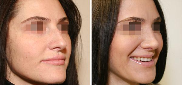 Ринопластика носа с горбинкой, вид в 3/4, хирург Шихирман Э.В.