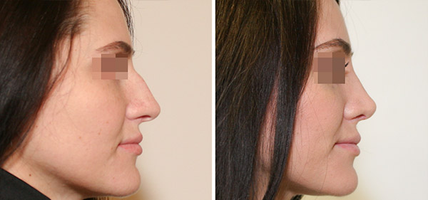Ринопластика носа с горбинкой, вид сбоку, хирург Шихирман Э.В.