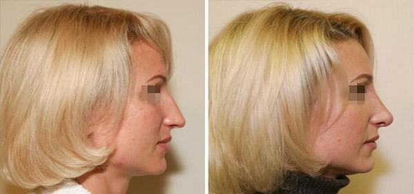 Ринопластика опущенного кончика носа, доктор Шихирман