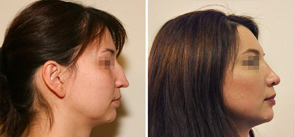 Ринопластика у Шихирмана Э.В., вид сбоку (горбинка, опущенный кончик носа)