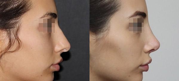 ринопластика носа с раздвоенным кончиком, вид сбоку, хирург Григорянц В.С.